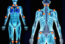 FIBROMYALGIE POINTS photo:radio
